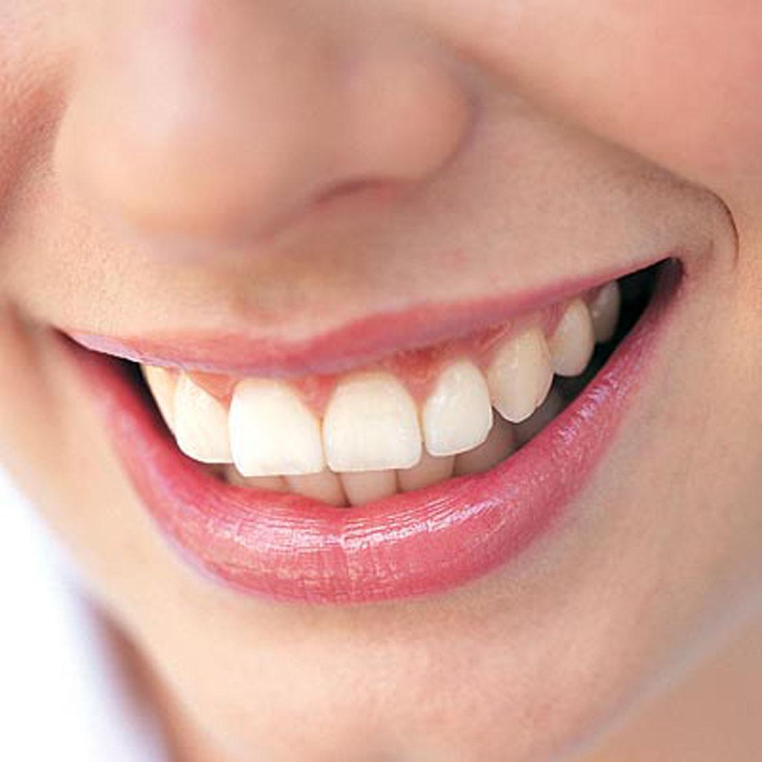 A dohányzás mellékhatásai: Ínysorvadás és a fogak elvesztése