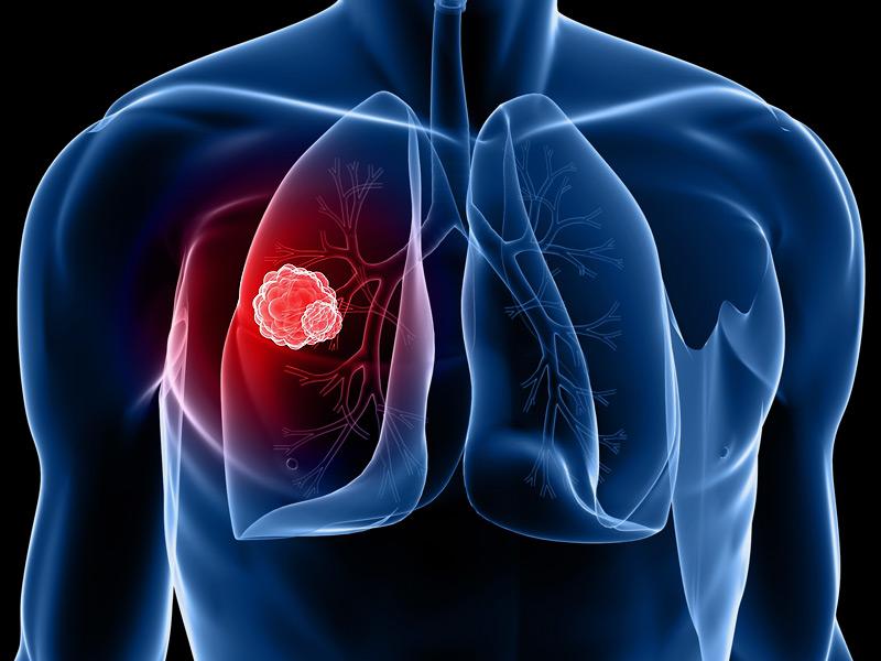 A tüdőrák még megelőzhető!